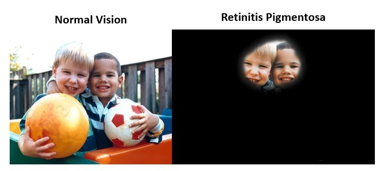 An image is shown comparing what normal vision looks like against what a person with RP can see.